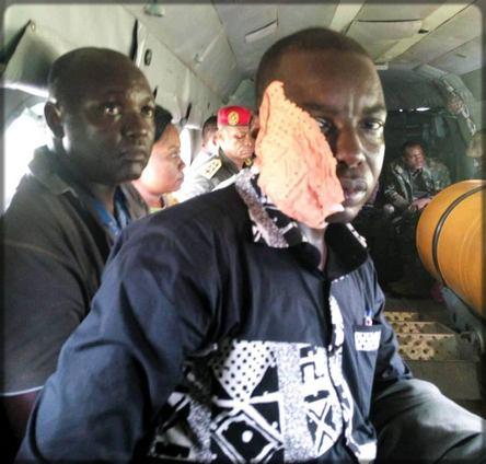 blessure du journaliste Grégoire Djamarla lors de la crise camerounaise