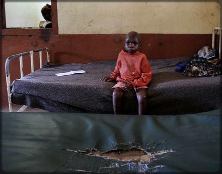 un enfant dans un hôpital en mauvais état