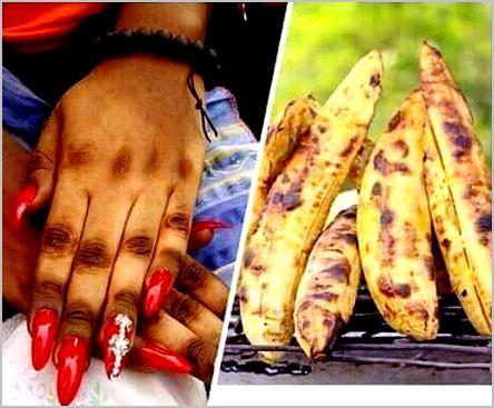mains fanta-coca causées par le ndjansang